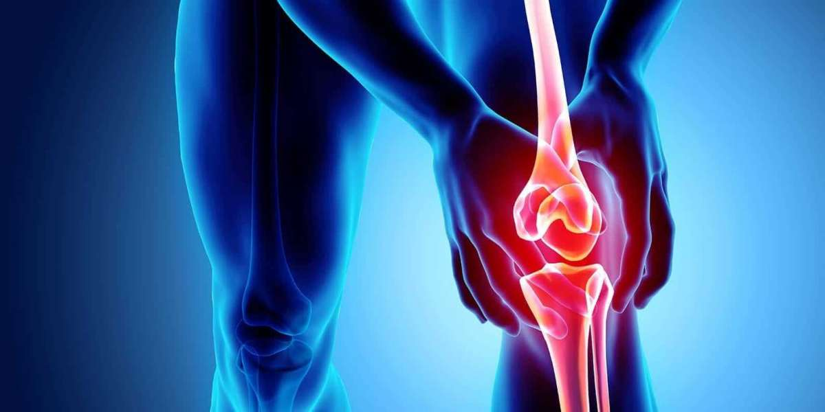 Osteoarthritis  Market Growth, Trends, Future Opportunities, Analysis and Forecast To 2025 | Research Informatic